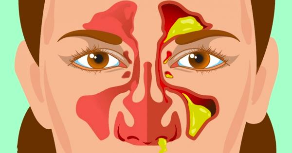 bihåleinflammation snyter blod