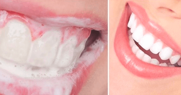 naturligt vita tänder