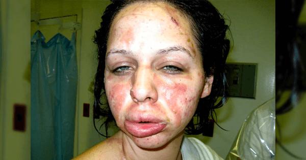 spottar blod efter näsblod