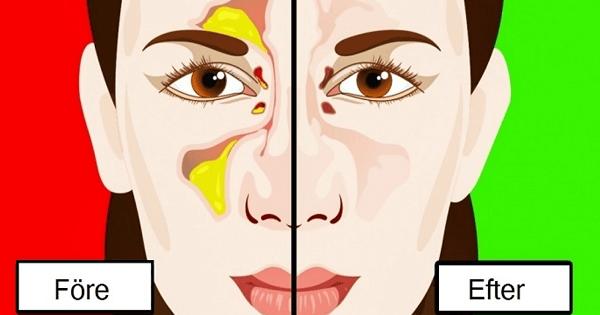 varför blir man täppt i näsan